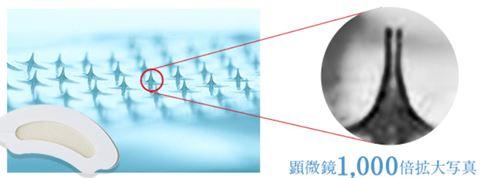 iマイクロパッチの針のイメージ図